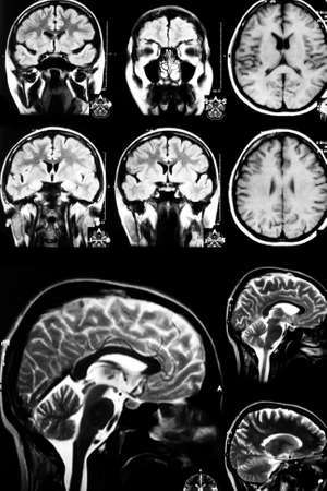 brain cancer: x-ray scan of brain