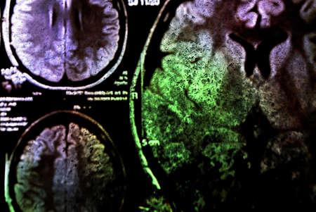 colorido de rayos X de exploración de cerebro Foto de archivo