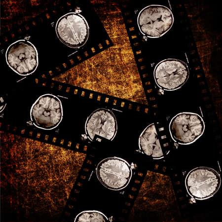 resonancia magnetica: película de rayos X del cerebro de las exploraciones en el fondo del grunge