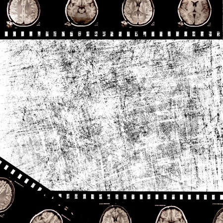 film with x-ray scans of brain on grunge background photo