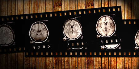 film with x-ray scans of brain on wooden background photo