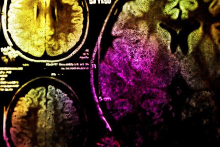 colorful x-ray scan of brain photo
