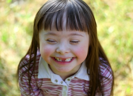 down syndrome: Portrait of beautiful young girl in the park. Stock Photo