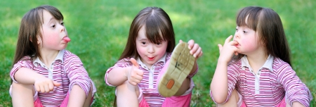 down's syndrome: Portrait of beautiful funny girls in the park   Stock Photo