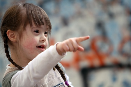down syndrome: Portrait of beautiful happy girl