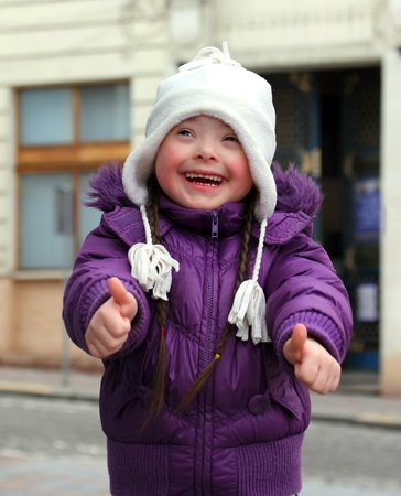 down's syndrome: Portrait of beautiful happy girl giving thumbs up.