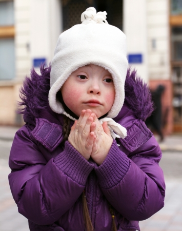 down's syndrome: Portrait of beautiful girl.