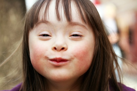 down's syndrome: Portrait of young happy girl smiling. Stock Photo