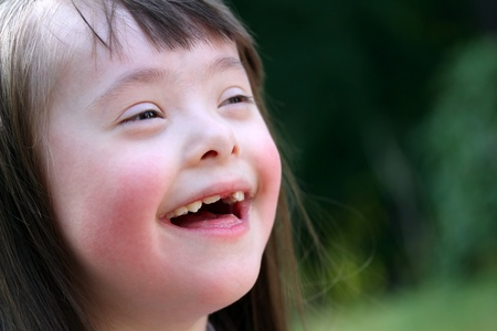 downs syndrome: Portrait of beautiful young girl smiling in the park
