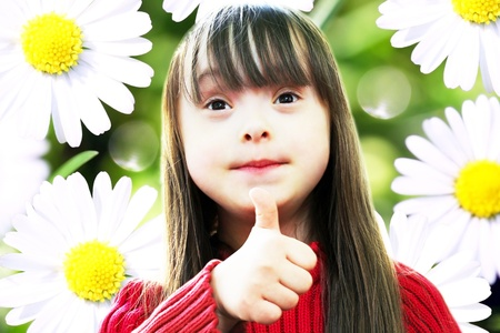 down syndrome: Portrait of beautiful young girl on the background of sunny chamomile flowers