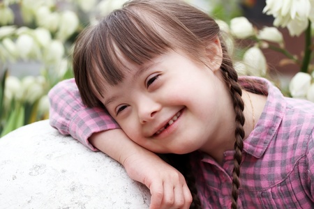 down's syndrome: Portrait of smiling girl on flowers background