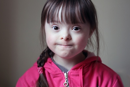 down syndrome: Portrait of beautiful young girl