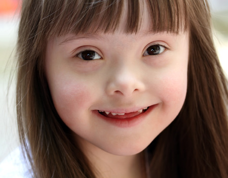 downs syndrome: Portrait of beautiful young girl