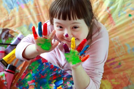 enfants handicap�s: Cute little girl avec les mains peintes Banque d'images