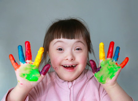 people with disabilities: Cute little girl with painted hands. Isolated on grey background. Stock Photo