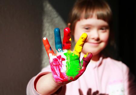 discapacidad: Ni�a linda con las manos pintadas