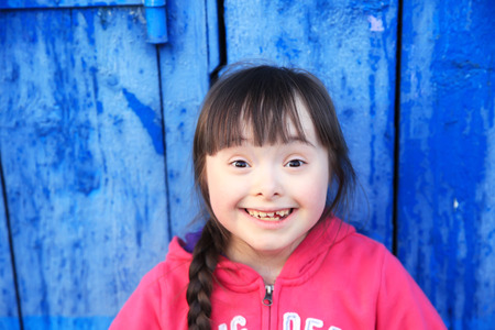 down's syndrome: Young girl smiling on background of the blue wall. Stock Photo
