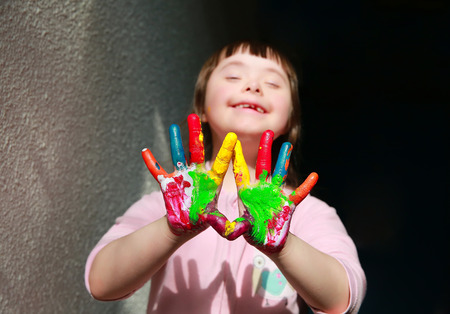 down's syndrome: Cute little girl with painted hands. Stock Photo