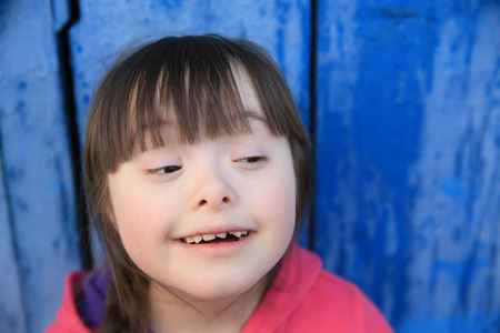 Down Syndrome: Young girl smiling on background of the blue wall. Stock Photo
