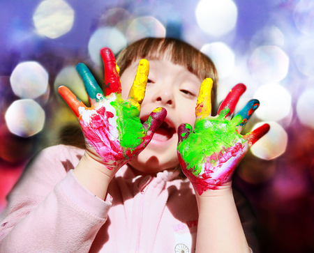 downs syndrome: Cute little girl with painted hands