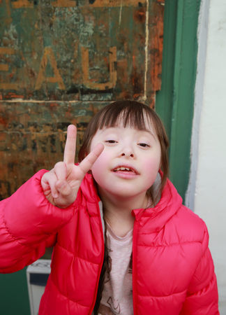 downs syndrome: Close-up portrait of beautiful girl in the city