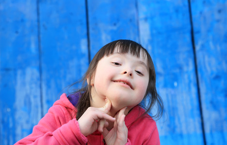 disabled person: Young girl smiling on background of the blue wall Stock Photo