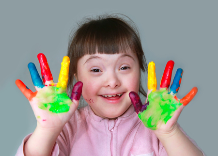 people with disabilities: Cute little girl with painted hands. Stock Photo