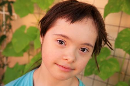 Portrait of the little girl with down syndrome Lizenzfreie Bilder