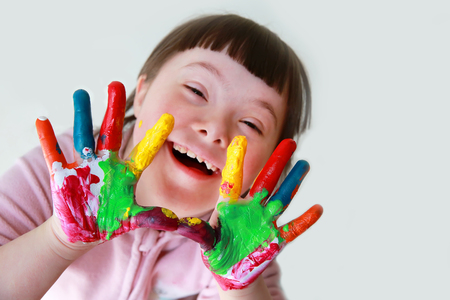 Cute little down syndrome girl with painted hands. 版權商用圖片 - 85233539