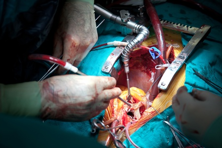 heart surgery: scene of an operation 6
