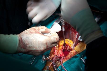 pacientes: escena de una operaci�n de 5 Foto de archivo