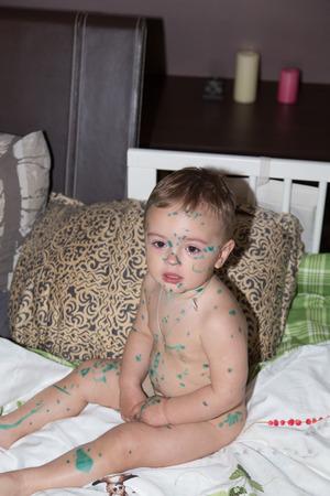 varicela: bastante pequeño bebé enfermedad chico varicela