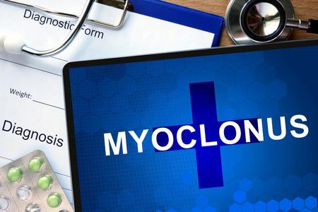 seizures: Diagnostic form with diagnosis Myoclonus and pills. Stock Photo