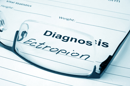senile: Diagnosis list with Ectropion and glasses. Stock Photo