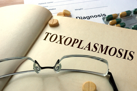 protozoan: Word Toxoplasmosis. Medical concept.