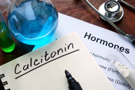 hormone: Hormone calcitonin written on notebook.