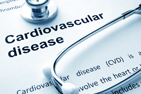 cardiovascular: Paper with words Cardiovascular diseases and stethoscope.