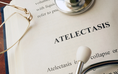 Document with diagnosis atelectasis in a hospital. Stock Photo
