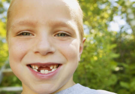 Smiling boy missing teeth