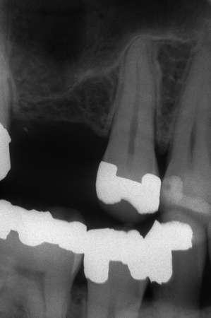 radiotherapy: Dental x-ray