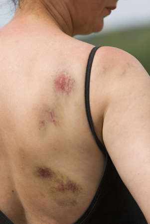 Bruising on womans right shoulder and back