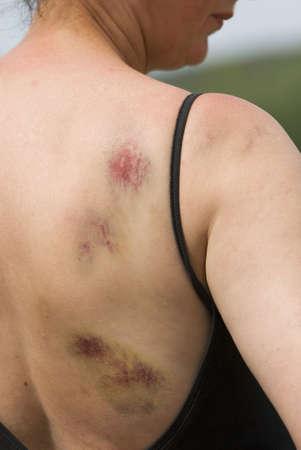 mujer golpeada: Contusiones en el hombro derecho y la parte posterior de la mujer