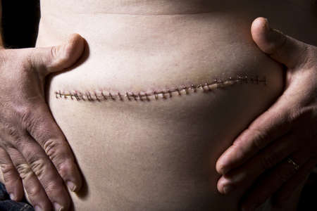 the scars: Stitches from surgery Stock Photo