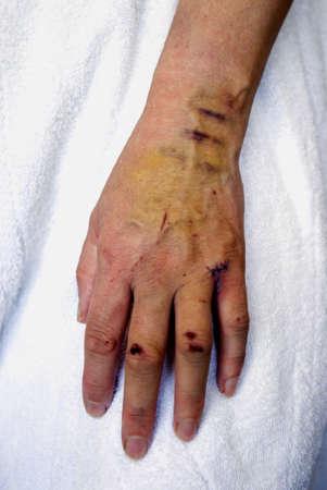 mujer golpeada: Cortes y contusiones en mano de la mujer