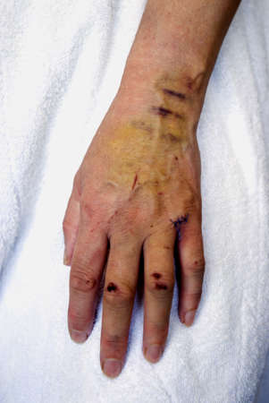 cut: Cuts and bruises on a womans hand