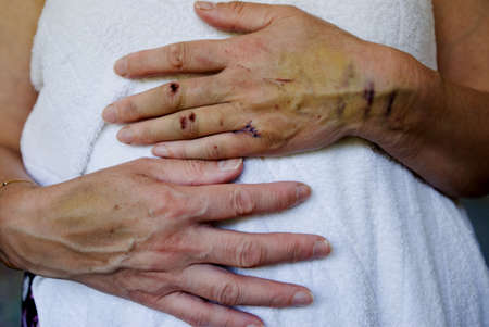 Injuries to a woman's hand and arm Stock Photo - 7559348