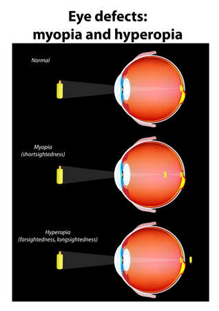 myopia: Human eye   Defects   myopia and hyperopia  The image projected onto the retina is inverted due to the optics of the eye  Illustration