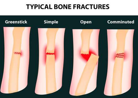 osteoarthritis: Fracturas de hueso t�pico esquema vectorial