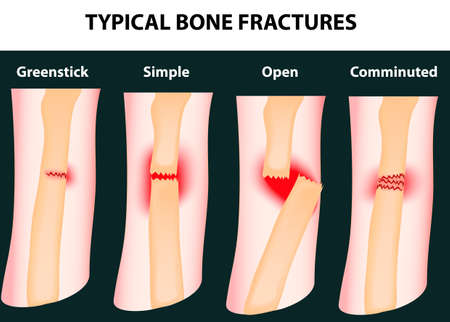 Typical bone fractures  Vector scheme Illustration