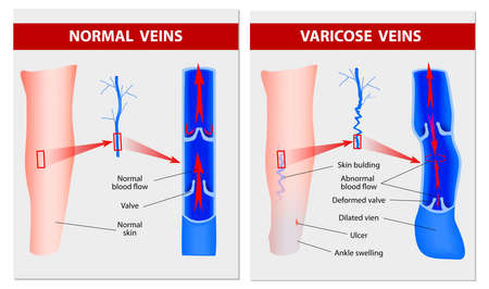 ulceration: Varicose vein forms in a leg  Normal vein and varicose vein  Vector